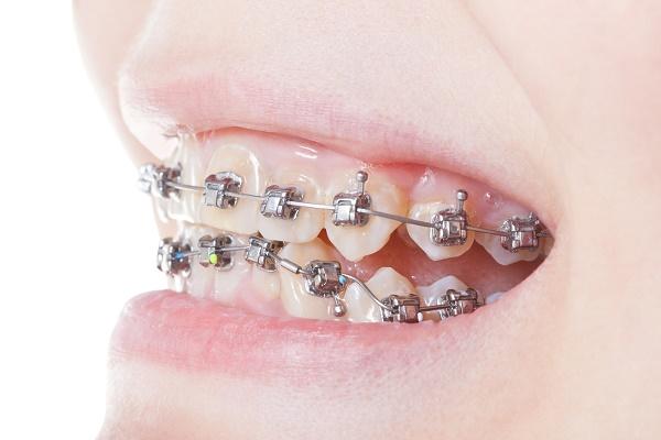 сколько стоит поставить брекеты на зубы взрослому или ребенку
