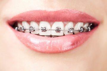 сколько будет стоить установить брекеты на зубы