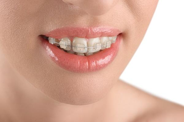 как выпрямить зубы пластиковыми брекетами, цена