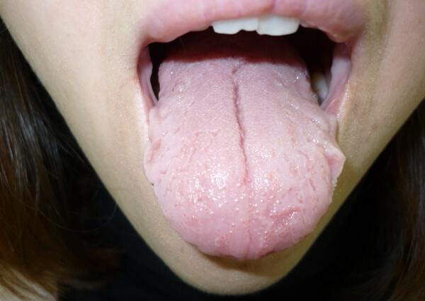 возможные осложнения после появления трещин на языке
