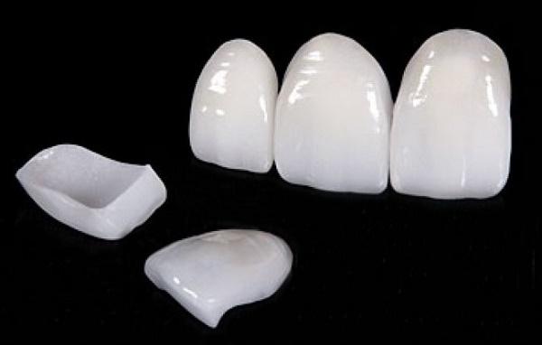 справится с клиновидным дефектом зубов помогут виниры
