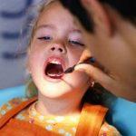 для чего нужно фторирование зубов у детей