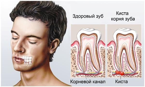 киста корня зуба симптомы