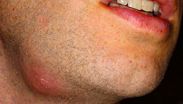 последствия кисты зуба