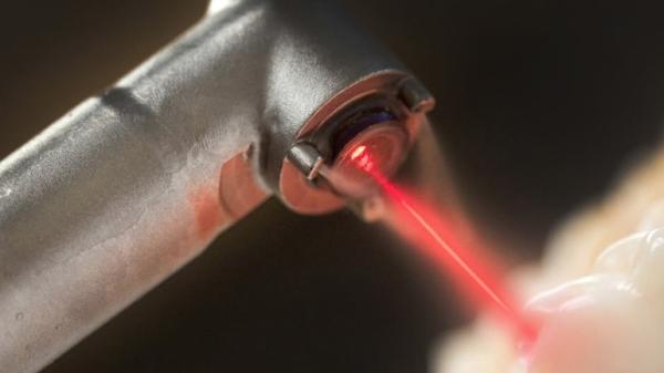терапия кисты зуба лазером
