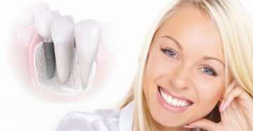Отзывы пациентов и стоматологов об имплантах Mis
