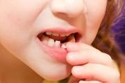 Когда выпадают молочные зубы схема