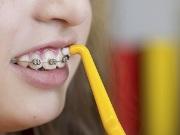 Особенности монопучковой зубной щетки