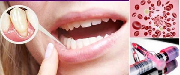 Плазмолифтинг в стоматологии обучение