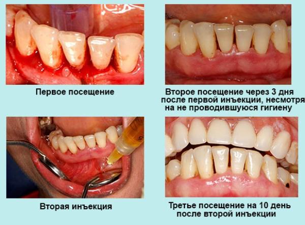 Плазмолифтинг в стоматологии отзывы