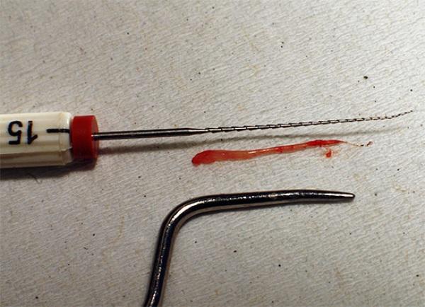 Сколько болит зуб после удаления нерва и пломбирования