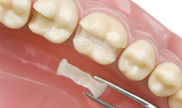 Сколько стоит вставить имплант зуба