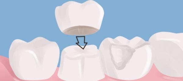 Сколько стоит вставить пластмассовый зуб