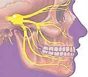 Воспаление тройничного нерва симптомы