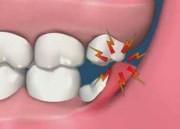 Почему зуб мудрости растет в щеку