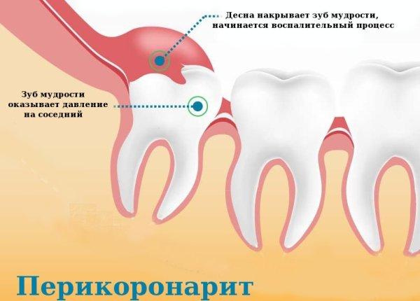 Зуб мудрости симптомы воспаления