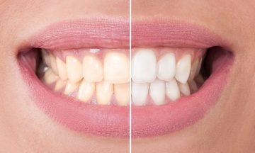 можно ли самому отбелить желтые зубы в домашних условиях, чем это сделать
