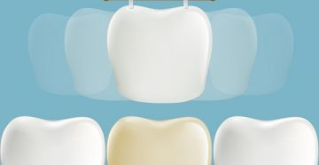 что такое виниры, фото до и после установки стоматологом