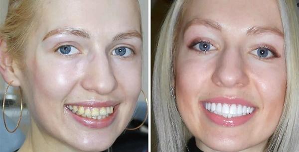 керамические виниры на клыки и передние зубы, фото