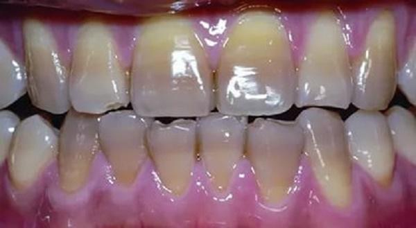 механизм связывания кальция при тетрациклиновых зубах, симптомы заболевания