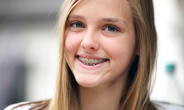 сколько надо времени, чтобы выровнять зубы подростку