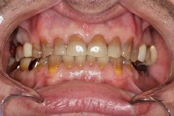 тетрациклиновые зубы: что это, фото заболевания