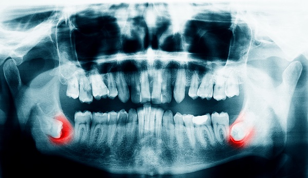 для чего нужна рентген диагностика