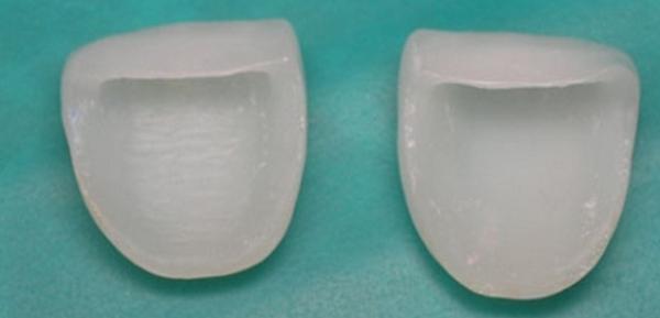 можно ли отбелить тетрациклиновые зубы, использование виниров