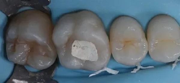 запечатывание дентинных каналов, если зубы начали реагировать на горячее и холодное