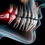 причины роста зуба мудрости в сторону