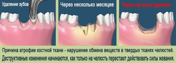 Стоимость базальной имплантации зубов