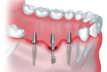 Отзывы стоматологов и пациентов о базальной имплантации зубов