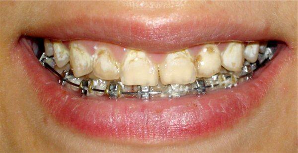 Почему на молочных зубах белые пятна
