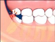 Что делать, если болит зуб мудрости