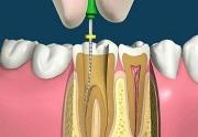 Почему болит зуб после удаления нерва