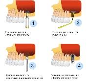 Обзор этапов имплантации зубов