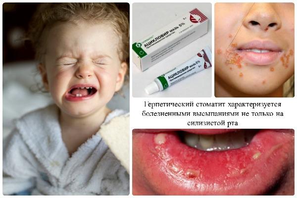 Острый герпетический стоматит у детей симптомы