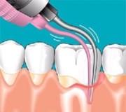 Гранулема зуба лечение