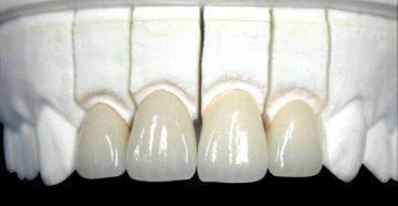 Изготовление и установка керамической коронки на зуб