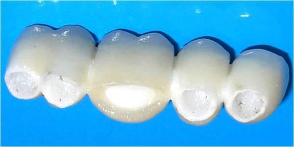 Керамические коронки на передние зубы цена