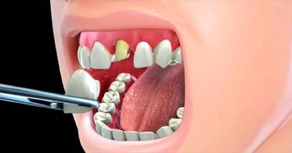 Керамические коронки на передние зубы фото