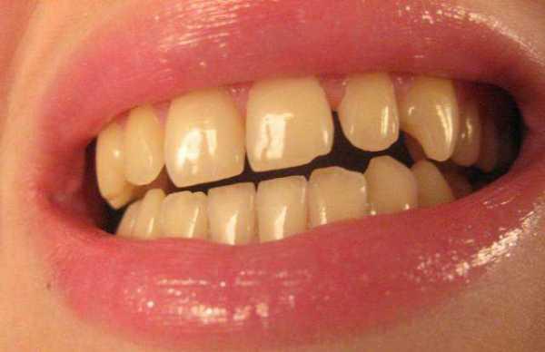 Красящие продукты для зубов после отбеливания