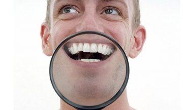 Причины появления и устранение белых пятен на зубах