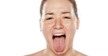 Причины образования коричневого налета на языке