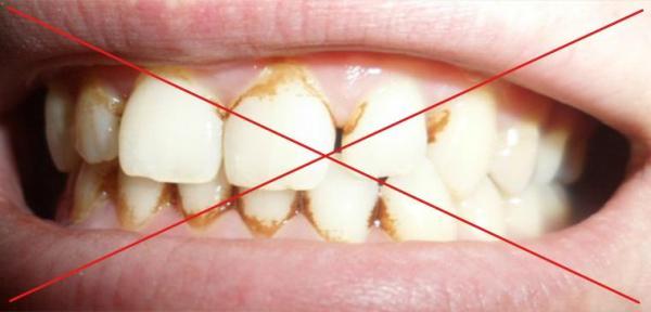 Карандаш для отбеливания зубов amazing white