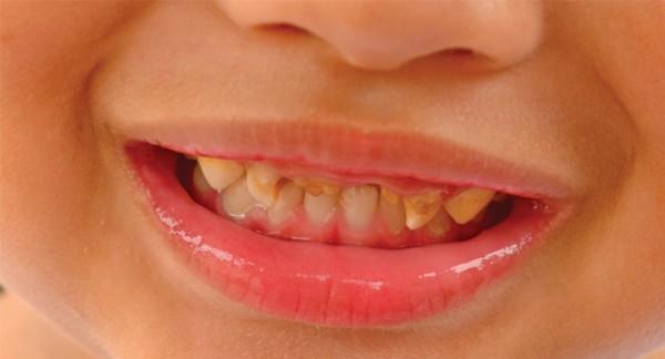 Скрежет зубами во сне причина и лечение