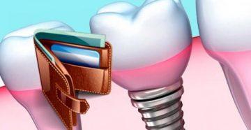 Сколько стоит имплантат зуба – факторы, влияющие на цену