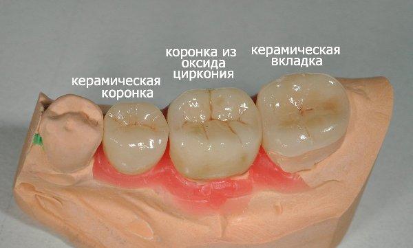 Стоимость керамической коронки на зуб