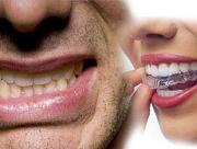 Лечение скрежета зубами во сне