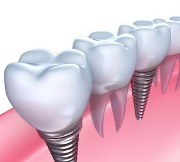 От чего зависит срок службы имплантов зубов